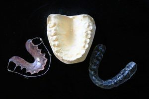 Retainers picture