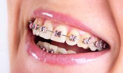 Traditional braces image