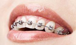 Self-ligating braces image